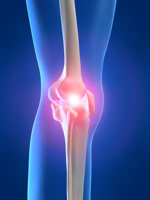 douleurs et inflammation au genou